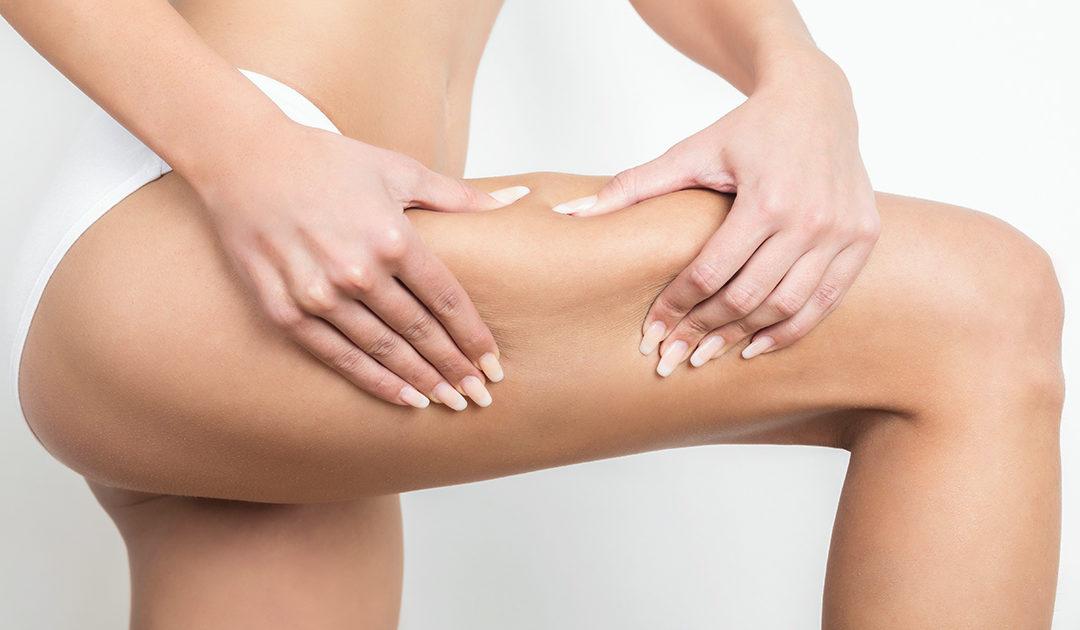 Cellulite, adiposità localizzata e ritenzione idrica? Scopri i trattamenti estetici MORE!
